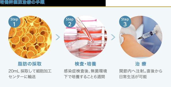培養幹細胞治療の手順