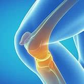 治療の影響を受けるひざ関節