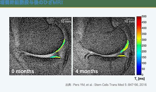 培養幹細胞治療後のひざのMRI画像