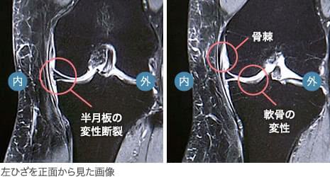 50代後半・女性/変形性膝関節症(初期)