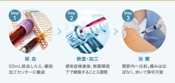 PRP-FD注射の治療の流れ