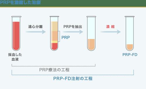 PRPとPRP-FD注射の工程の違い