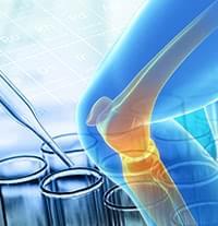 自分の再生能力を活かしたひざを切らない治療法