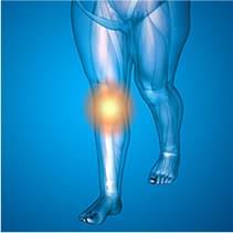 一次性の変形性ひざ関節症
