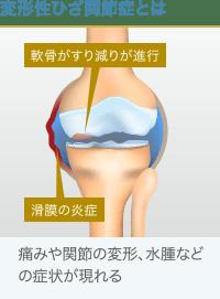 変形性ひざ関節症の病態