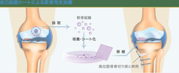 自己細胞シートによる軟骨再生治療の手順