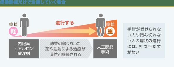 変形性ひざ関節症の進行と治療法の関係