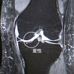 膝MRI画像(50代後半/初期の変形性膝関節症)